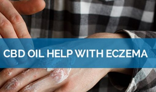 Suffering from Eczema? CBD could be the Ultimate Savior – Find out How
